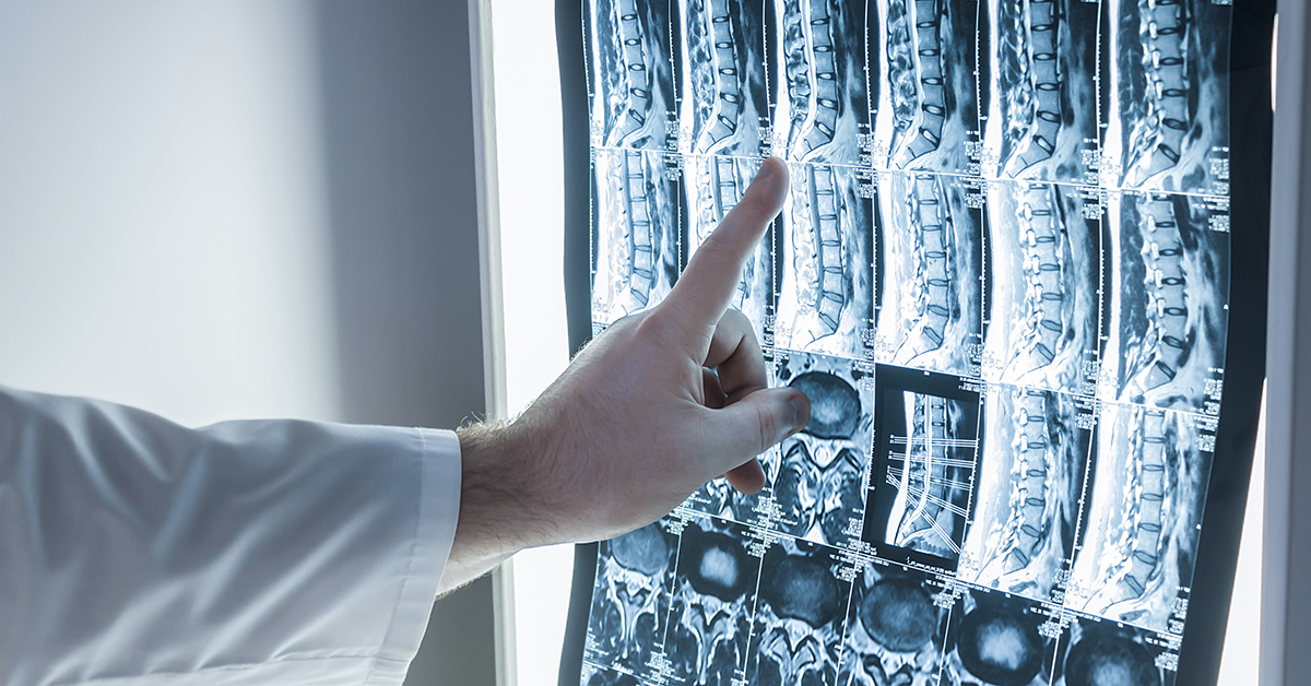 Neurologist and surgeon examine a patient's spine image; blog: Why Medical Imaging is Essential to an Accurate Diagnosis