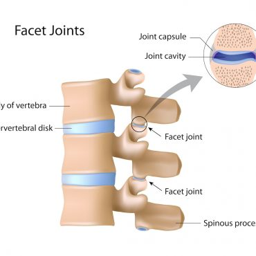 Diagram showing location and anatomy of facet joints; blog: 4 Facet Joint Facts